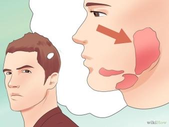 670px-Recognize-Mumps-Symptoms-Step-2-Version-2