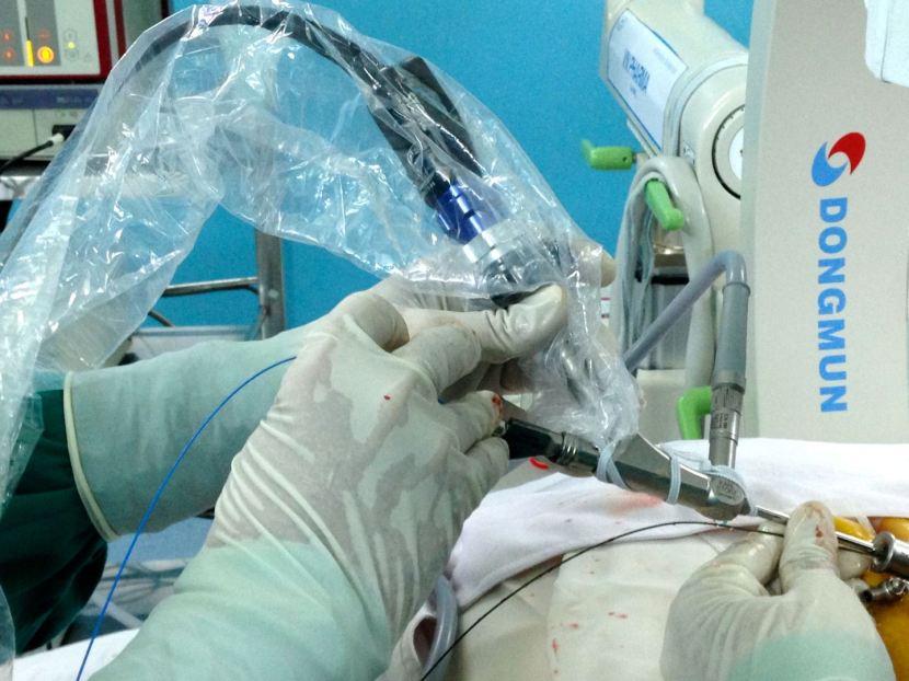 Bệnh viện Bình Dân triển khai thành công phương pháp tán sỏi thận qua da bằng dụng cụnhỏ